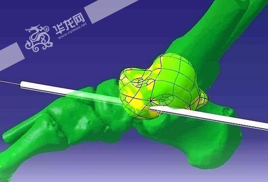 世界首例3D打印距骨人体手术在重庆完成