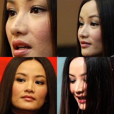 美女明星脸上长痘痘疤痕高清素材
