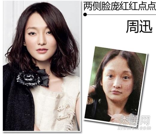 娱圈女星烂脸惊悚照:周迅过敏满脸包